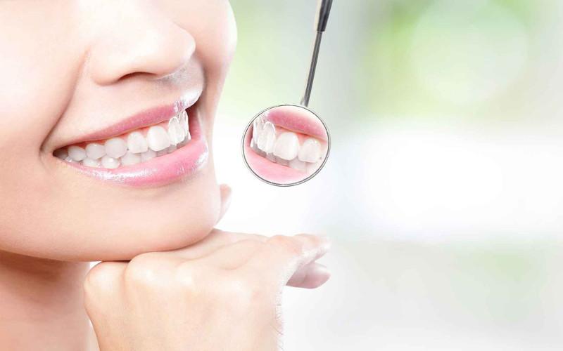 Mảng bám răng có chứa hàng triệu vi khuẩn.