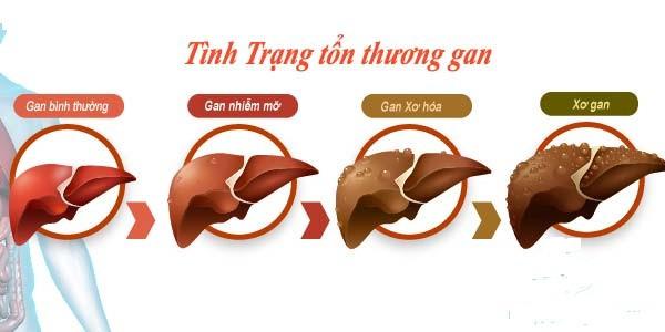 Lạm dụng kháng sinh dễ gây tổn thương gan.