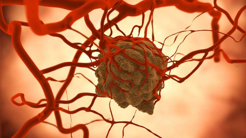 Thông thường, các bệnh nhân mắc ung thư sẽ qua đời vì sự di căn của khối u gốc.
