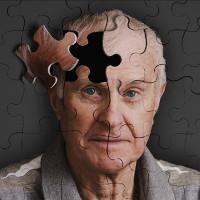 Bệnh nhân đầu tiên mang virus HIV sống lâu đến mức bị mắc Alzheimer