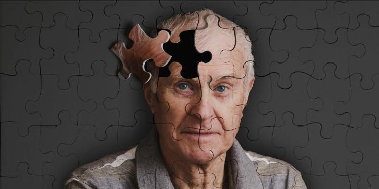 Bệnh nhân HIV ngày nay đã sống đủ lâu để mắc Alzheimer.
