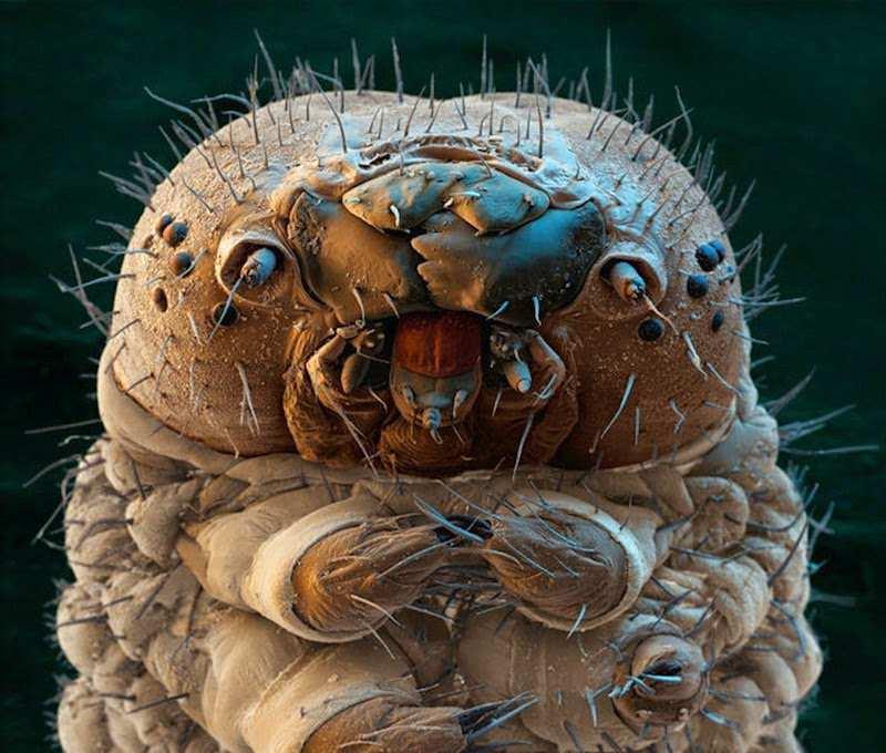 Một con sâu dưới kính hiển vi