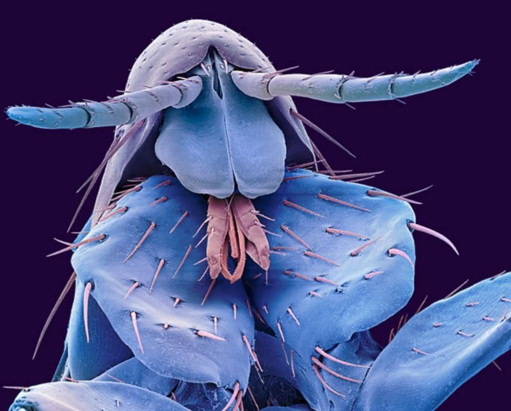 Con bọ chét trên người