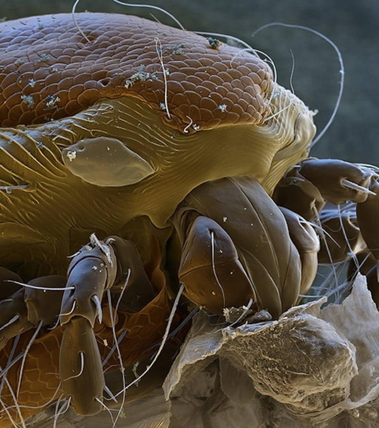 Trông con kí sinh trùng này như quái vật ngoài hành tinh ấy