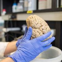 Các nhà khoa học tìm ra con đường ngăn chặn hoàn toàn ung thư não