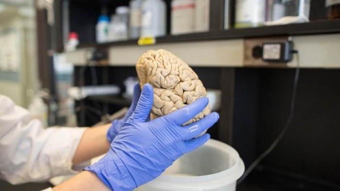 Trong tương lai, một loại ung thư não nguy hiểm có thể được ngăn chặn.