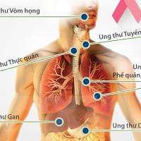 Người Việt ung thư dễ chết do thường phát hiện muộn