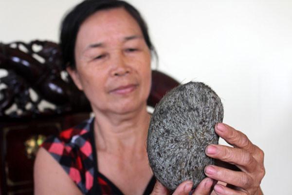 Nhiều người cho rằng vật lạ này là cát lợn và có tác dụng chữa bệnh.