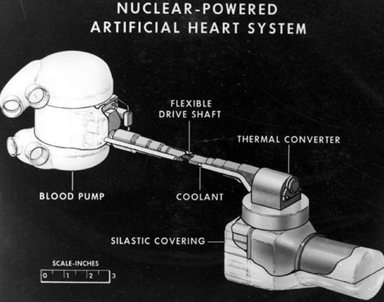 Một quả tim hoạt động bằng năng lượng nguyên tử có thể giúp bệnh nhân xài được hàng chục năm.