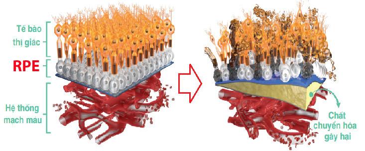 RPE bị tổn hại khiến lớp tế bào thị giác chết đi, ảnh hưởng thị lực nghiêm trọng.