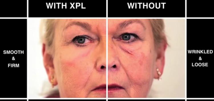 XPL được dùng như mặt nạ đắp hàng ngày.