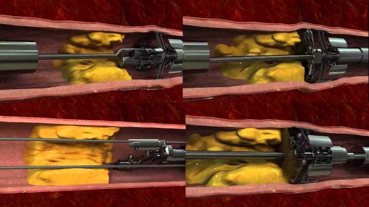 """Cỗ máy """"nạo vét"""" cholesterol ngay bên trong mạch máu."""