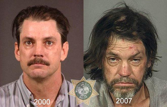 Sử dụng heroin liên tục trong 7 năm khiến người đàn ông trở nên hốc hác với những đốm vảy trên da.