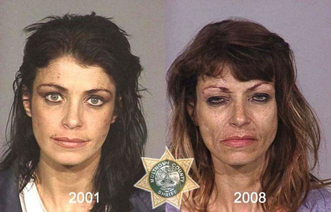 Người phụ nữ lão hóa nhanh chóng trong vòng 7 năm, mắt đầy quầng thâm do sử dụng ma túy.