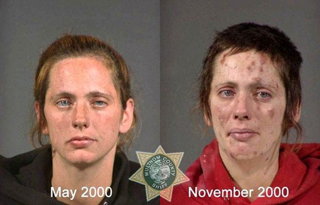 Khuôn mặt của người phụ nữ này thay đổi khủng khiếp chỉ sau 6 tháng.
