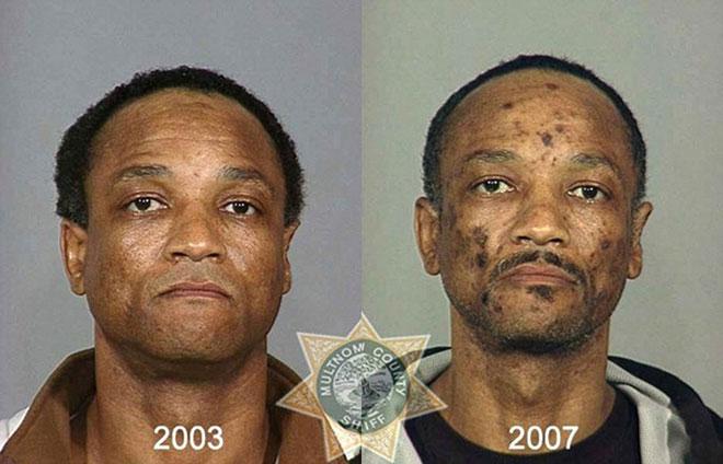 Chỉ 4 năm sau dùng heroin, khuôn mặt ông xuất hiện đầy đốm đen.