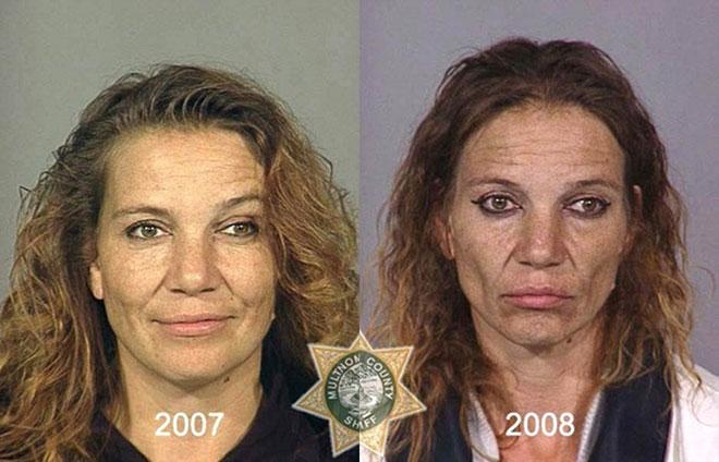 Sau một năm, người phụ nữ khỏe mạnh với làn da tươi sáng trở nên già nua, mặt đầy nếp nhăn, má hõm và nhợt nhạt.