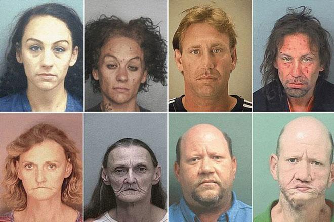 Một tấm hình khác cho thấy tác động của heroin lên mọi người, mọi giới tính, độ tuổi.