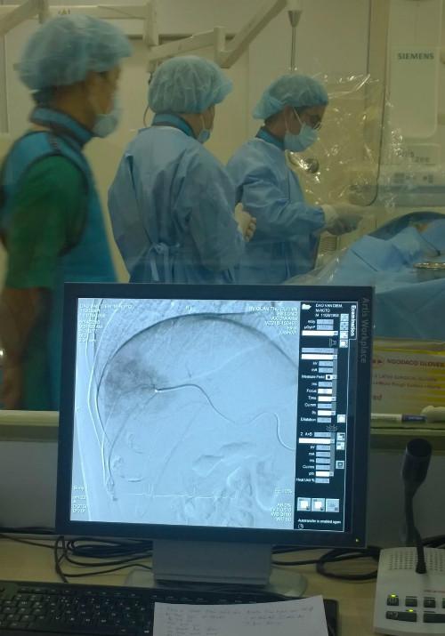 Các bác sĩ điều trị bệnh nhân bằng phương pháp TACE.