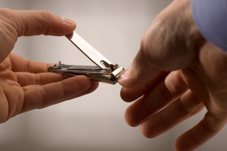Kiểm tra ngón chân, tay thường xuyên để nhận biết nếu có dấu hiệu bất thường.