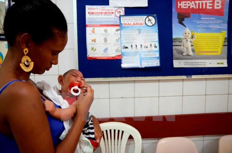 Một trẻ nhỏ bị mắc bệnh teo não do virus Zika ở Brazil.