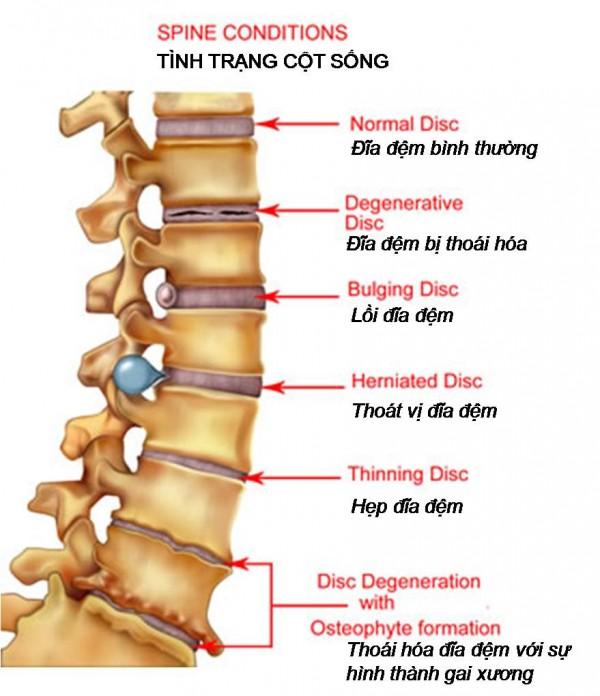 Vị trí và tên gọi các triệu chứng của thoái hóa cột sống