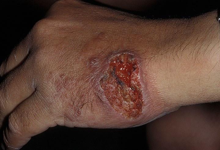 Nếu không chăm sóc cẩn thận, rất có thể bạn bị nhiễm trùng từ một vết thương nhỏ