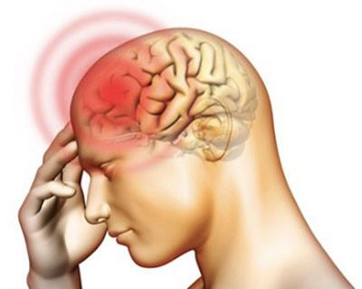 Đau đầu là triệu chứng hay gặp nhất, thường đau ở trán và sau gáy.