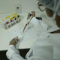 Công bố phương pháp thử mới phát hiện virus Zika trong 20 phút