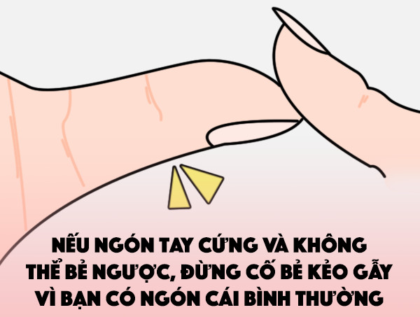 Ngón tay cái thông thường, không thể bẻ.