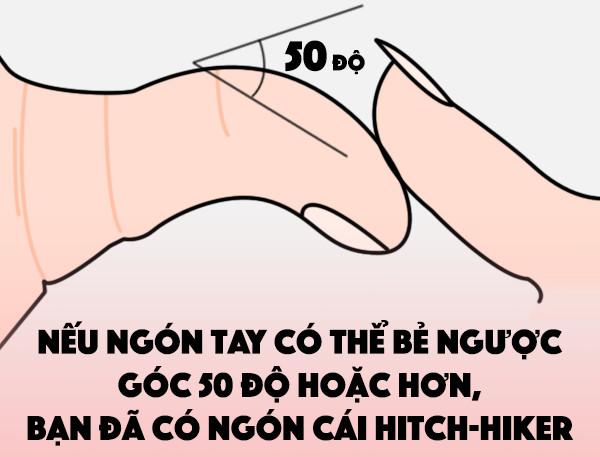 Ngón tay cái có thể bẻ ngược (Ngón cái hitch-hiker).