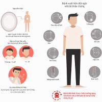 Triệu chứng cảnh báo viêm não mô cầu