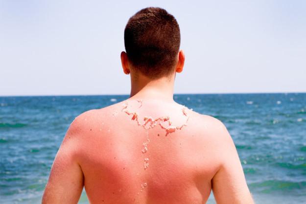 Làn da của con người luôn thoái hóa, tạo thành lớp da chết.