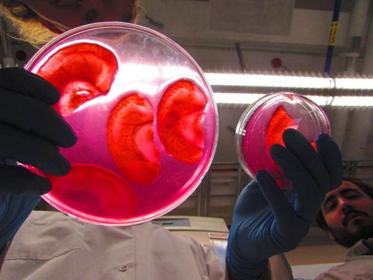 Nhóm nghiên cứu sẽ khoét quả táo theo hình dạng vành tai, rồi mới thay tế bào người vào đó.