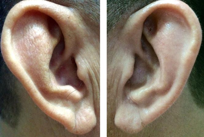 Người có nếp nhăn rõ thấy ở dái tai tăng 10% nguy cơ bị tắc nghẽn động mạch.