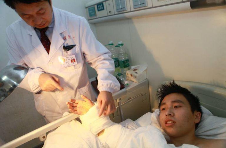 Sau khi được phẫu thuật cấy ghép hoàn lại bàn tay.