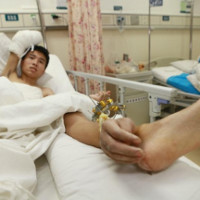 Ca cấy ghép hi hữu bàn tay được nuôi dưỡng trên chân