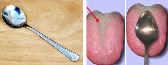 Lưỡi khỏe mạnh thì gần như không có mảng bám trên lưỡi và ngược lại mảng bám dày.
