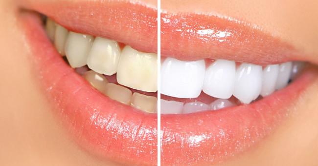 Cách làm răng trắng hơn