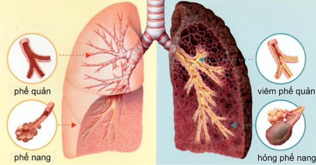 Các rối loạn bên trong phổi hình thành nên các loại bệnh về phổi