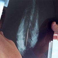 Thuốc chống loãng xương có thể ức chế ung thư vú