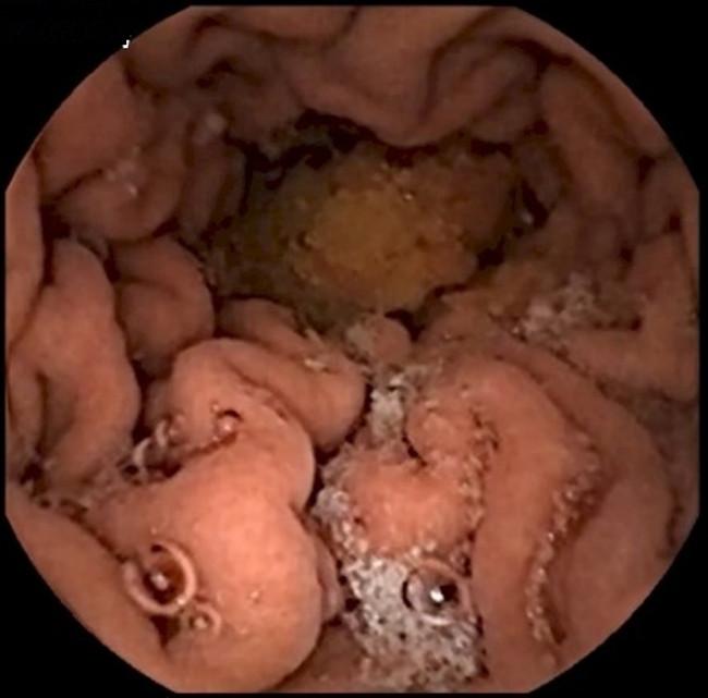 Đây là hình ảnh dạ dày của bạn khi có thức ăn vào