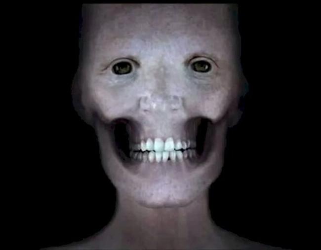Nếu không có lớp cơ, khuôn mặt của con người trông sẽ như thế này