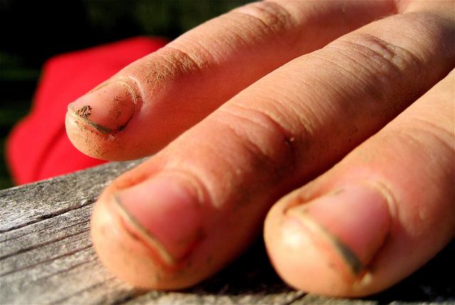 Những cáu bẩn đang tích trữ dưới móng tay đến từ đâu?