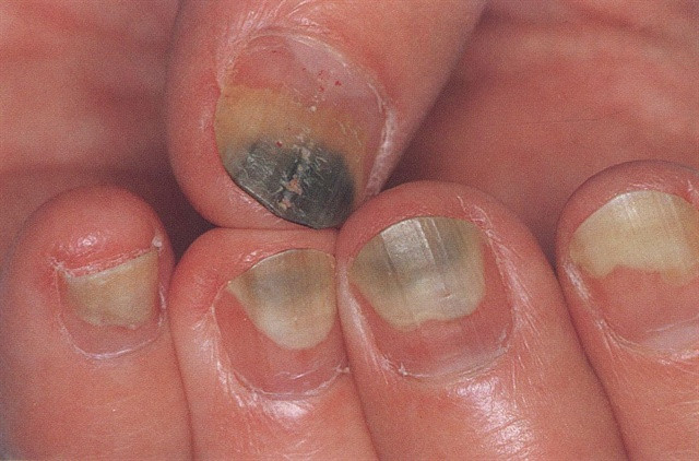 Ở giữa lớp móng tay của con người và phần thịt ngón tay tồn tại một khoảng không nhỏ gọi là subungual.