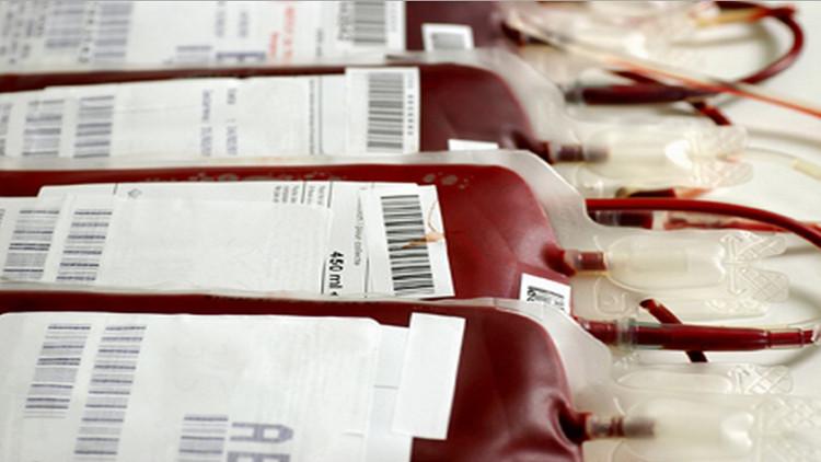 Alexander Bogdanov tin rằng phương pháp truyền máu có thể là chìa khóa dẫn đến sự bất tử.