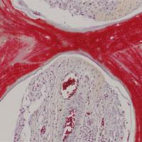 Xương nhân tạo từ tế bào lợn có thể cấy ghép cho người