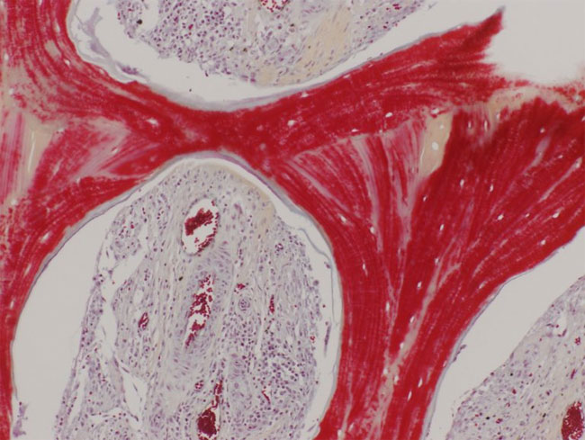 Hình ảnh này cho thấy xương tái sinh, với chất nền khoáng (màu đỏ) và hệ mạch phát triển (mạch máu với các tế bào hồng cầu trong xoang).