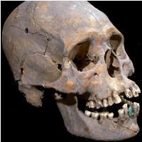 Hộp sọ dài giống người ngoài hành tinh nạm đá quý ở răng