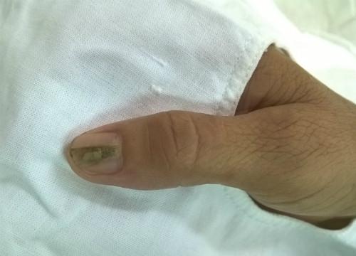 Biểu hiện của u cuộn mạch dưới móng là móng tay có sọc, đau nhức kéo dài.